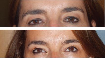 Comparativa de la mirada después de un tratamiento