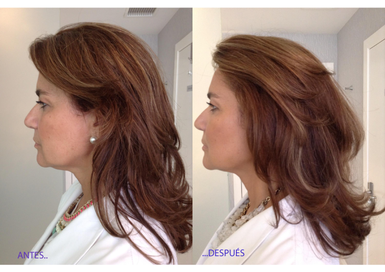 Antes y después de tratamiento de hilos mágicos