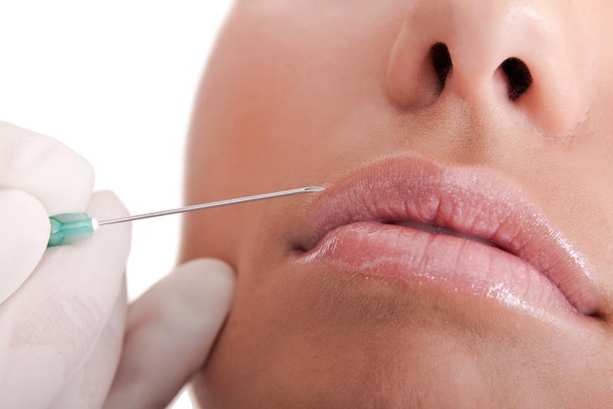 Tratamientos de volumen en labios
