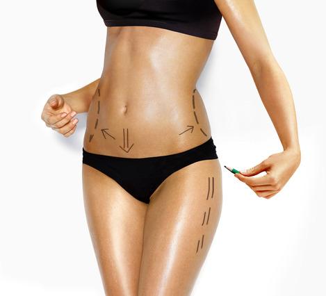 Cirugía corporal